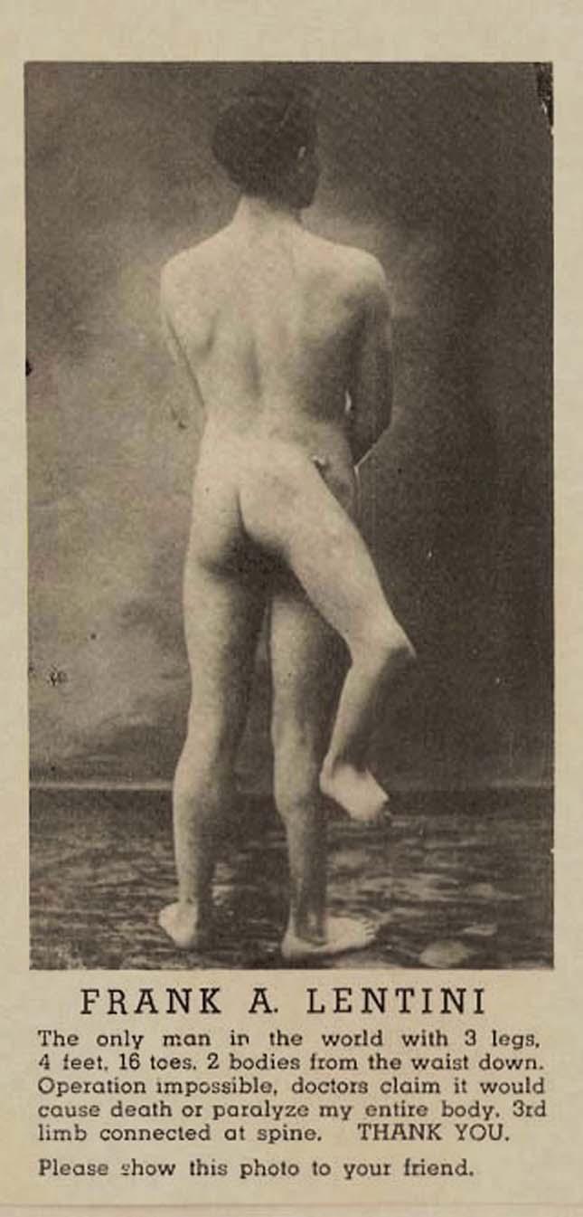 Francesco Lentini, a három lábú férfi