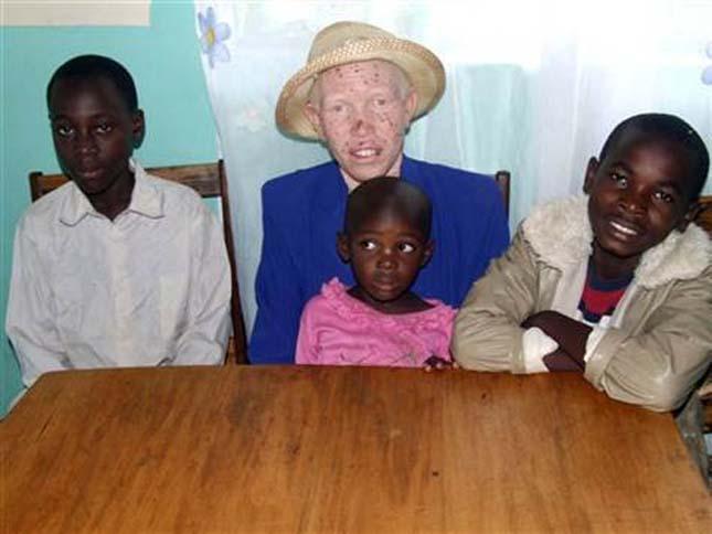Veszélyben vannak az afrikai albínók
