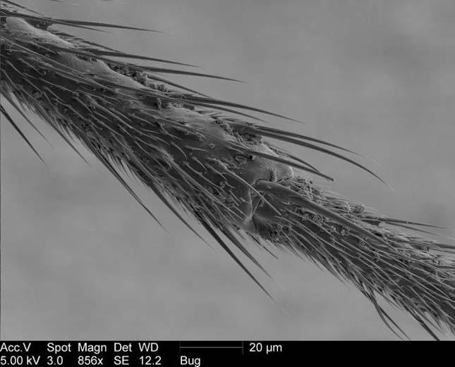 Elektronmikroszkópos képek egy szúnyogról