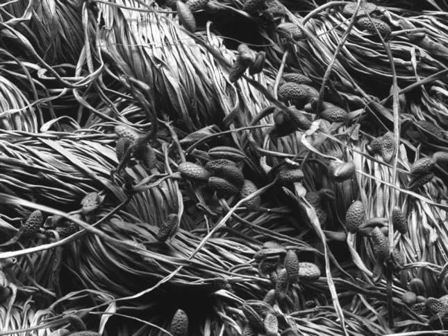 Elektronmikroszkoppal készült képek