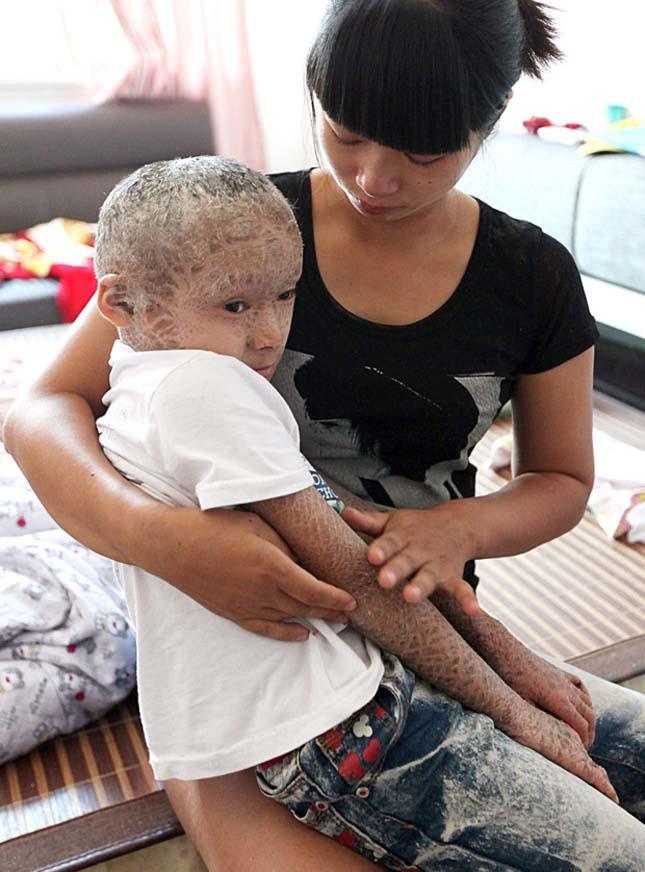 Ichthyosis, súlyos bőrbetegség