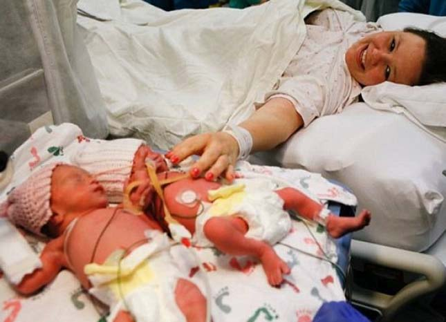 Kézen fogva születtek az ikrek