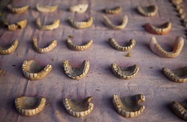 Indiai utcai fogorvos