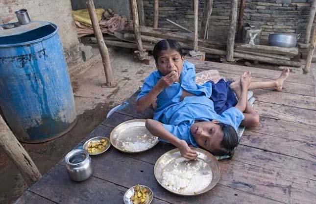 Indiai sziámi ikrek
