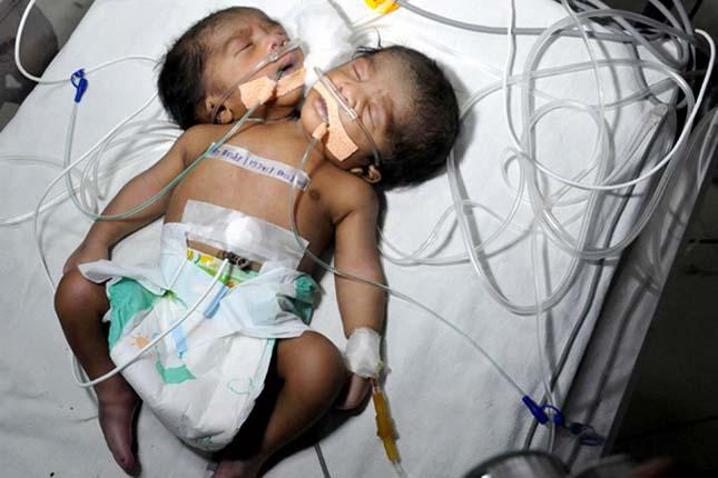 Kétfejű baba született Indiában
