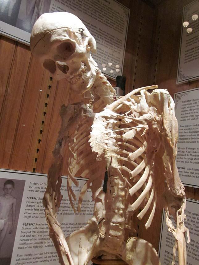 Csontemberek