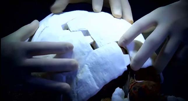 3D nyomatatóval készítettek páncélt a sérült teknősnek