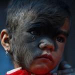 Bhawana Thami – megműtötték a szőrös arcú kislányt
