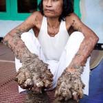 Faember – rendkívül ritka betegségben szenved egy indonéz férfi