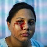 Vért könnyezik és izzad egy fiatal dominikai lány