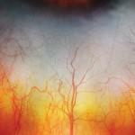 A nap képe – az emberi szem közelről