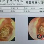 Megdöbbentek az orvosok mikor megvizsgálták a nő fülét