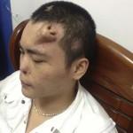 A homlokán növesztettek új orrot egy kínai férfinek