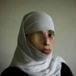 Szörnyű és szomorú sorsok – az iszlám világ női áldozatai, akiket egy életre elcsúfítottak