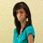 A lány aki zsírszövetek nélkül él – Lizzie Velásquez medöbbentő története