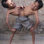 Az indiai sziámi ikrek nem akarják, hogy szétválasszák őket