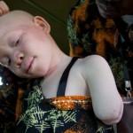 Afrikában még ma sem ritka az albínók rituális megcsonkítása és gyilkolása