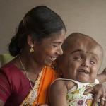 Egyre jobban van műtétje óta a túlméretezett fejű kislány