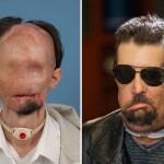 Photo: Dallas Wiens - az első páciens az USA-ban, aki teljes arcimplantátumot kapott