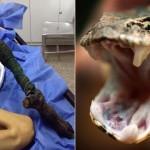 Kígyómarás miatt elfeketedett és elhalt egy 13 éves lány lába (18+)
