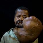 6 kilós daganatot műtöttek le egy madagaszkári férfi fejéről
