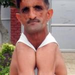 Az indiai gumiember, aki képes összeérinteni a vállait