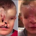 Photo: Új arcot kapott a szemek és orr nélkül született marokkói kisfiú