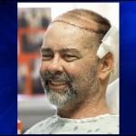 A világ első részleges koponyacsont- és fejbőrátültetését hajtották végre Amerikában