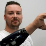 Új lehetőségeket nyit a bionikus kéz a végtagsérülteknek