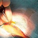 12 centiméteres férget távolítottak el egy nő szemhéjából