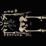 A leukémia legrégebbi ismert esetét azonosították egy hétezer éves csontvázon