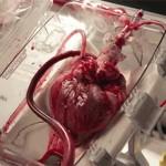 Átültetésig dobog a kiműtött szív, amit mesterséges vérkeringésbe kötnek