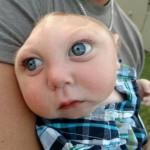 Photo: Járni és beszélni tanul a kisfiú, akinek az agya jelentős része hiányzik