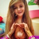 Műtétre vár a kislány, akinek a mellkasán kívül van a szíve