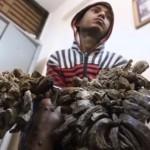 Végre megműtik a bangladesi faembert