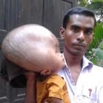 Segítségre vár a vízfejűségben szenvedő bangladesi kisfiú