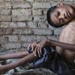 Photo: Több évnyi reménytelenség után végre megműtötték a ritka betegségben szenvedő fiút