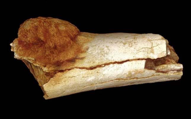 csontrak