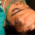 Homlokán növesztettek új orrot egy indiai kisfiúnak