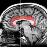 """A """"szuperöregek"""" agyának bizonyos részei megőrzik fiatalságukat a kor előrehaladtával"""