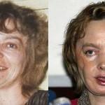 Meghalt a világ első arcátültetésen átesett páciense