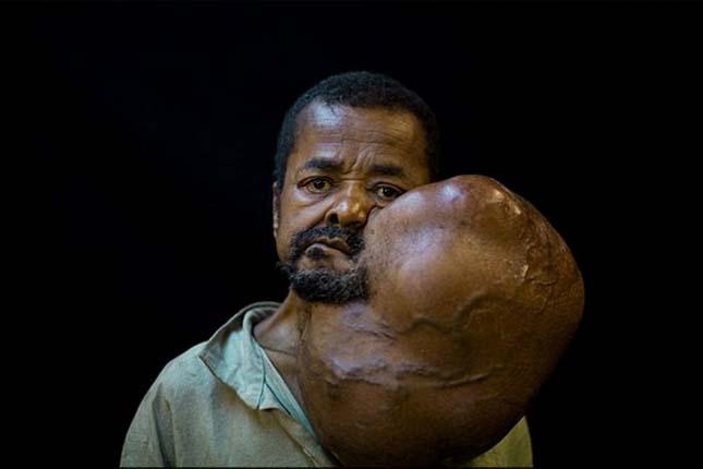 6 kilós daganat
