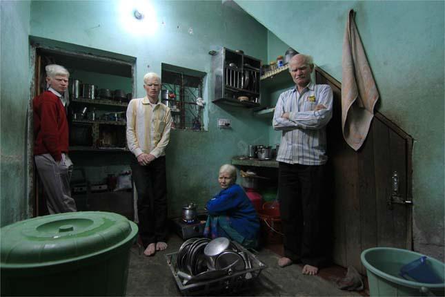 A világ legnagyobb albínó családja