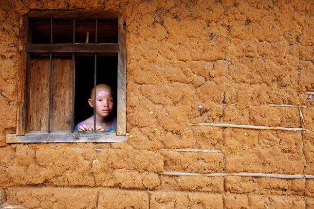 Albínók Tanzániában