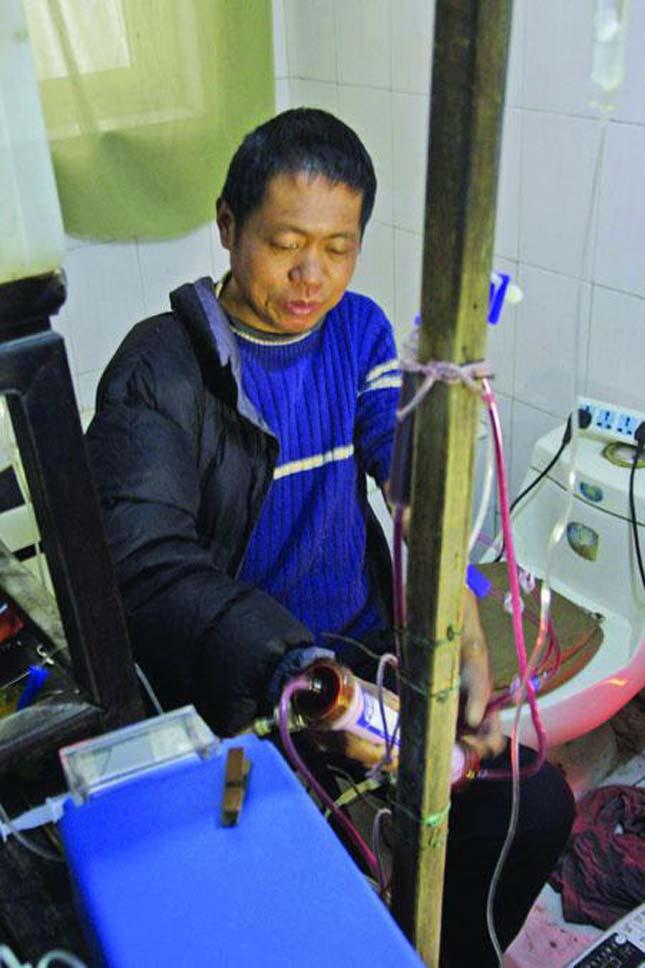 Házilag gyártott dialízis gép