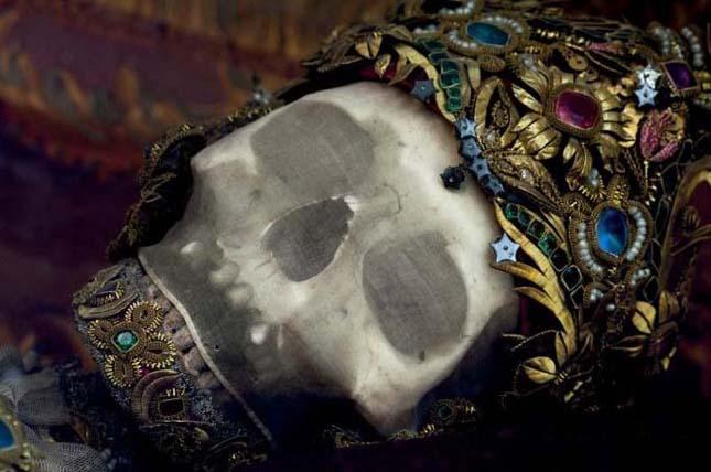 Arany csontvázak