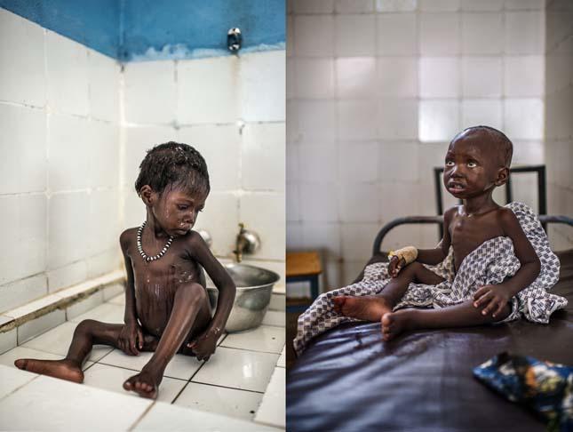Gyermekhalálozás Afrikában