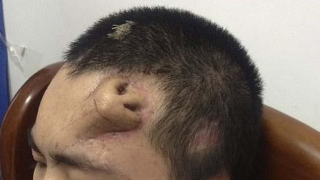 Homlokra növesztett orr