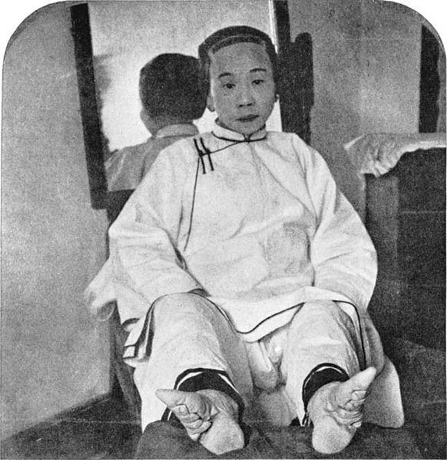 A kínai lábelkötés
