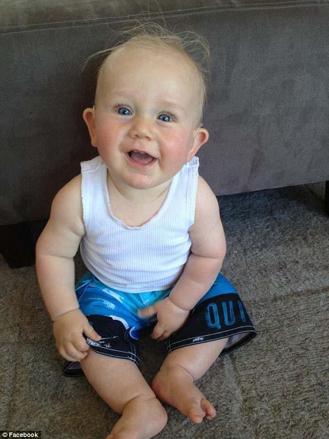 Hallássérült kisbaba először hall